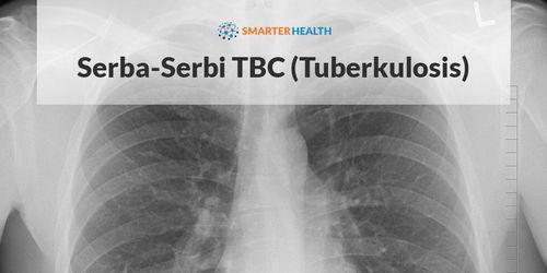 Apa Gejala Tuberkulosis? sebelum membuat pilihan