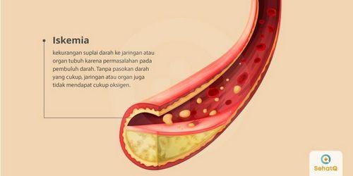 Apa Penyebab Penyakit Jantung Iskemik? lebih buruk tanpa